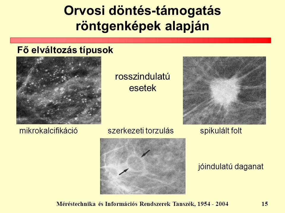 Méréstechnika és Információs Rendszerek Tanszék, 1954 - 200415 spikulált folt jóindulatú daganat mikrokalcifikáció szerkezeti torzulás rosszindulatú e