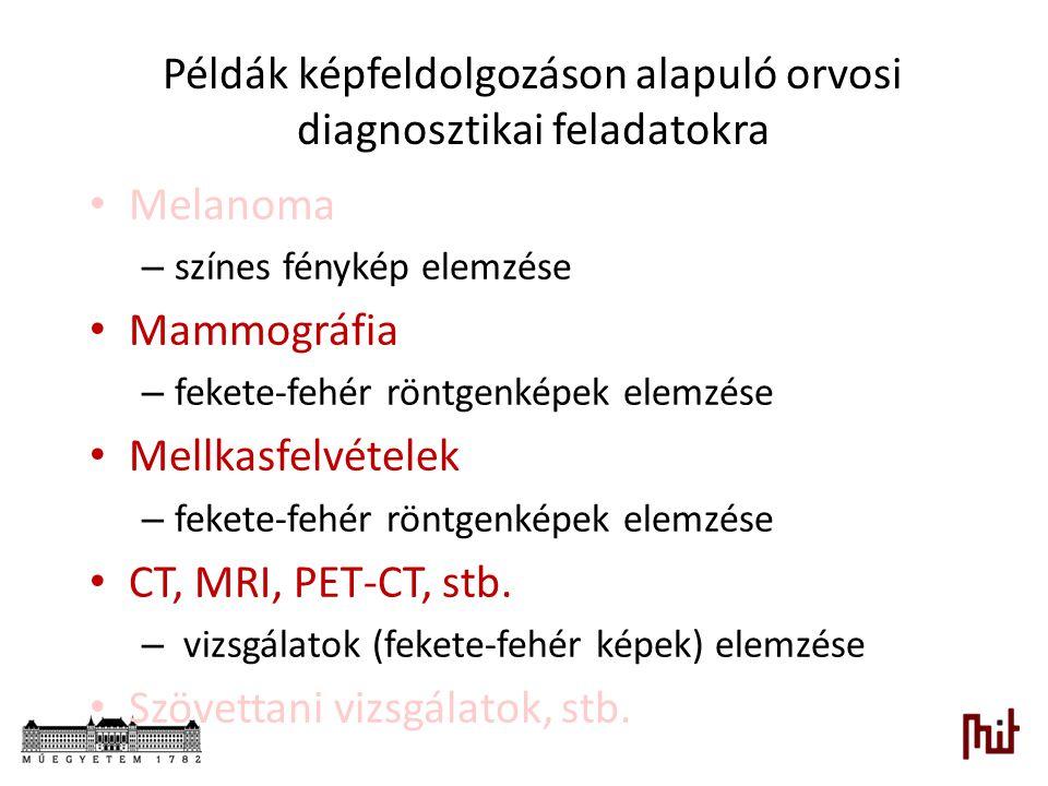 Példák képfeldolgozáson alapuló orvosi diagnosztikai feladatokra Melanoma – színes fénykép elemzése Mammográfia – fekete-fehér röntgenképek elemzése M