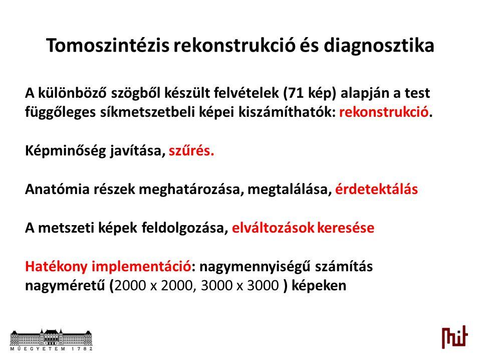 Tomoszintézis rekonstrukció és diagnosztika A különböző szögből készült felvételek (71 kép) alapján a test függőleges síkmetszetbeli képei kiszámíthat