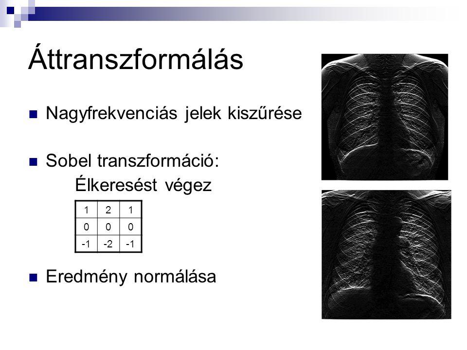 Nagyfrekvenciás jelek kiszűrése Sobel transzformáció: Élkeresést végez Eredmény normálása Áttranszformálás 121 000 -2