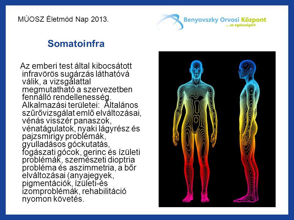 MÚOSZ Életmód Nap 2013. Somatoinfra Az emberi test által kibocsátott infravörös sugárzás láthatóvá válik, a vizsgálattal megmutatható a szervezetben f