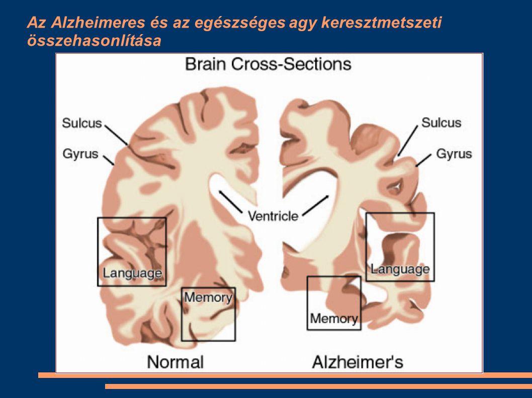 Az Alzheimeres és az egészséges agy keresztmetszeti összehasonlítása