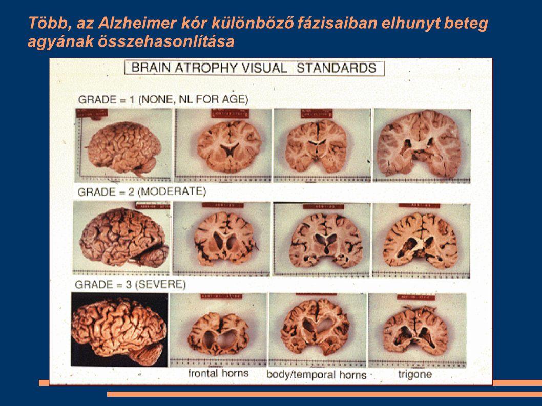 Több, az Alzheimer kór különböző fázisaiban elhunyt beteg agyának összehasonlítása