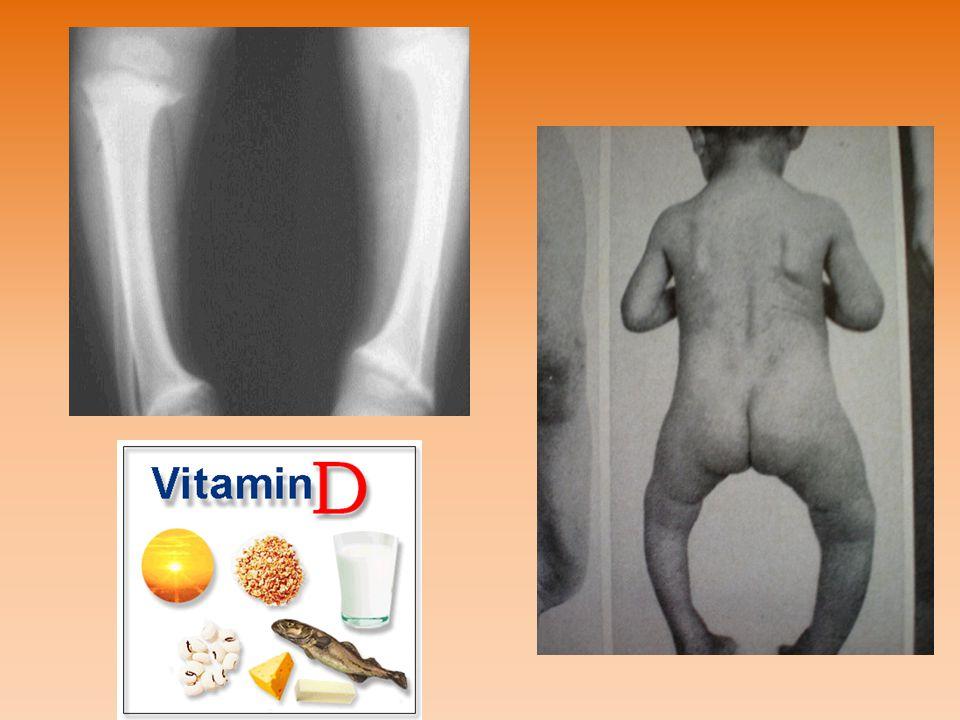 E-vitamin(tokoferol) A természetben igen elterjedt,hiánya ritka Gabonamagvak csírájában,marhamájban,húsban, tojássárgában,salátában sok található Hím patkányokban hiánya sterilitáshoz vezet, a nőstény patkányok nem válnak sterillé, de a terhesség kihordására képtelenek Teljes hiányakor izomsorvadás,izomgyengeség,bénulás fejlődik ki