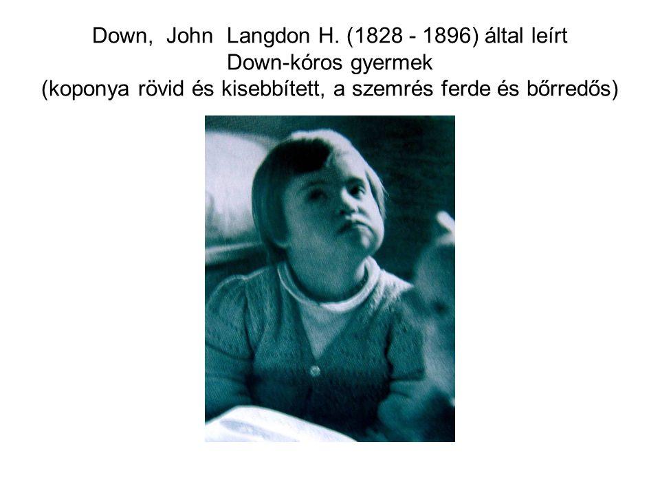 Down, John Langdon H. (1828 - 1896) által leírt Down-kóros gyermek (koponya rövid és kisebbített, a szemrés ferde és bőrredős)