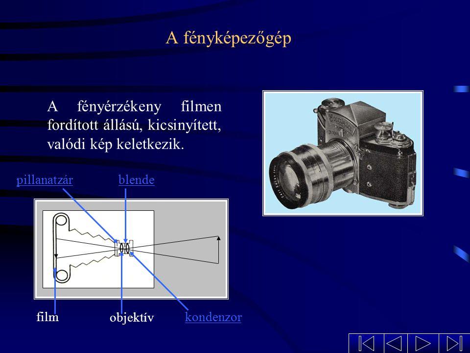 A rövidlátás Javítása szórólencsével. Rövidlátáskor a kép a retina előtt keletkezik.