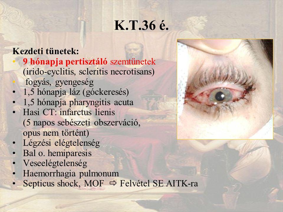 K.T.36 é.