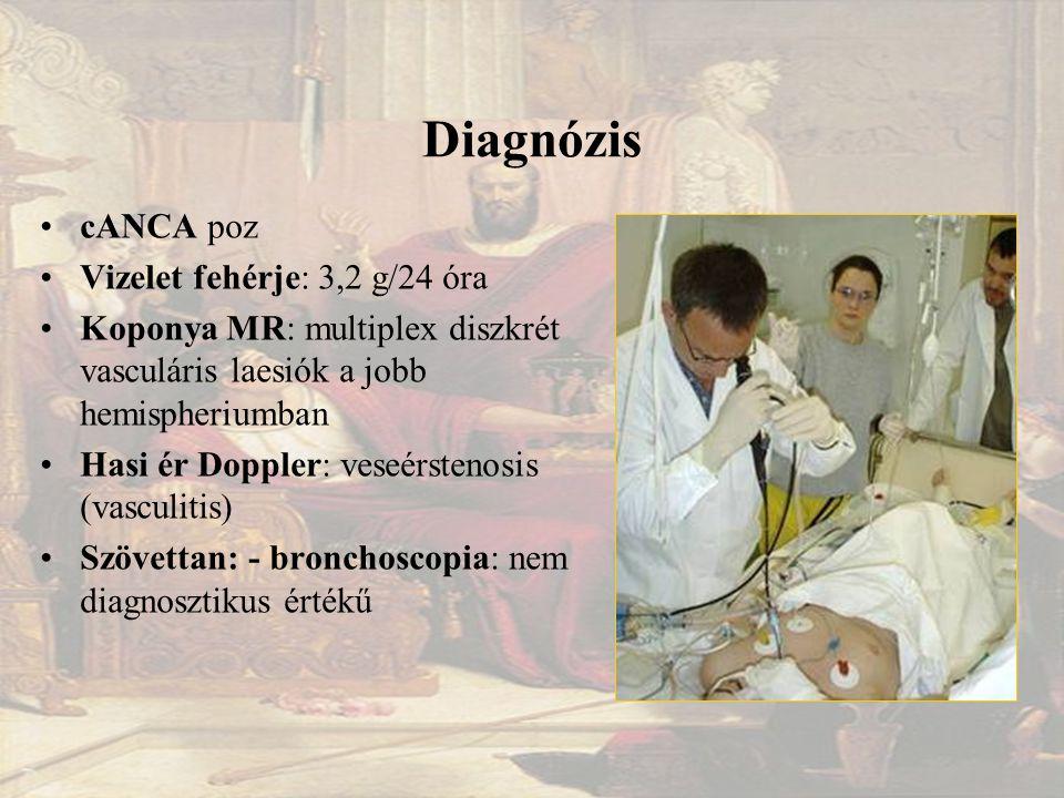 Diagnózis cANCA poz Vizelet fehérje: 3,2 g/24 óra Koponya MR: multiplex diszkrét vasculáris laesiók a jobb hemispheriumban Hasi ér Doppler: veseérstenosis (vasculitis) Szövettan: - bronchoscopia: nem diagnosztikus értékű