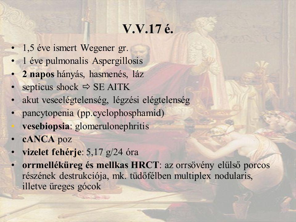 V.V.17 é.1,5 éve ismert Wegener gr.