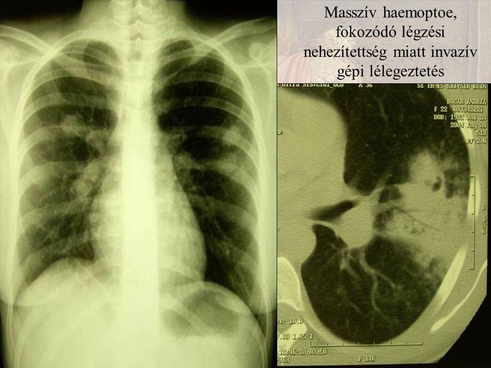 Masszív haemoptoe, fokozódó légzési nehezítettség miatt invazív gépi lélegeztetés