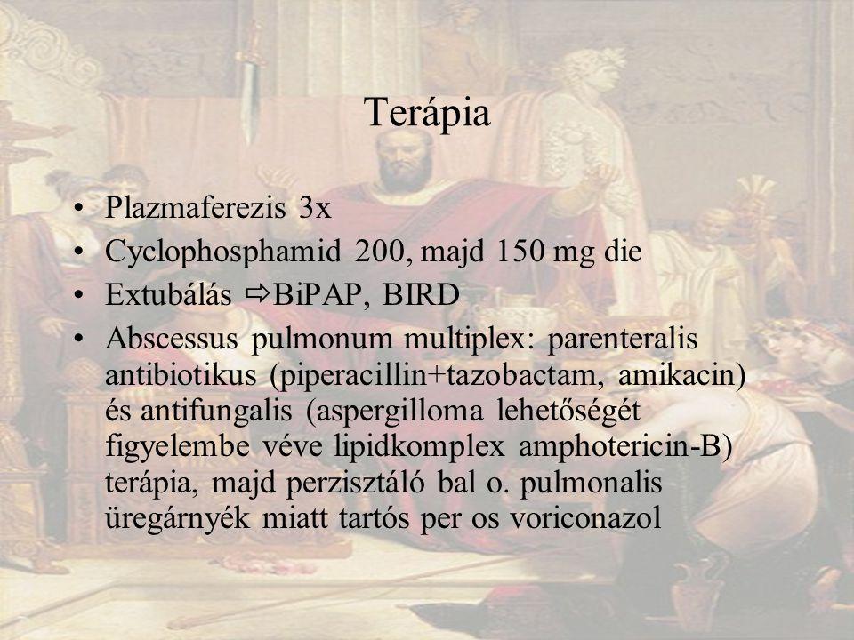 Terápia Plazmaferezis 3x Cyclophosphamid 200, majd 150 mg die Extubálás  BiPAP, BIRD Abscessus pulmonum multiplex: parenteralis antibiotikus (piperacillin+tazobactam, amikacin) és antifungalis (aspergilloma lehetőségét figyelembe véve lipidkomplex amphotericin-B) terápia, majd perzisztáló bal o.