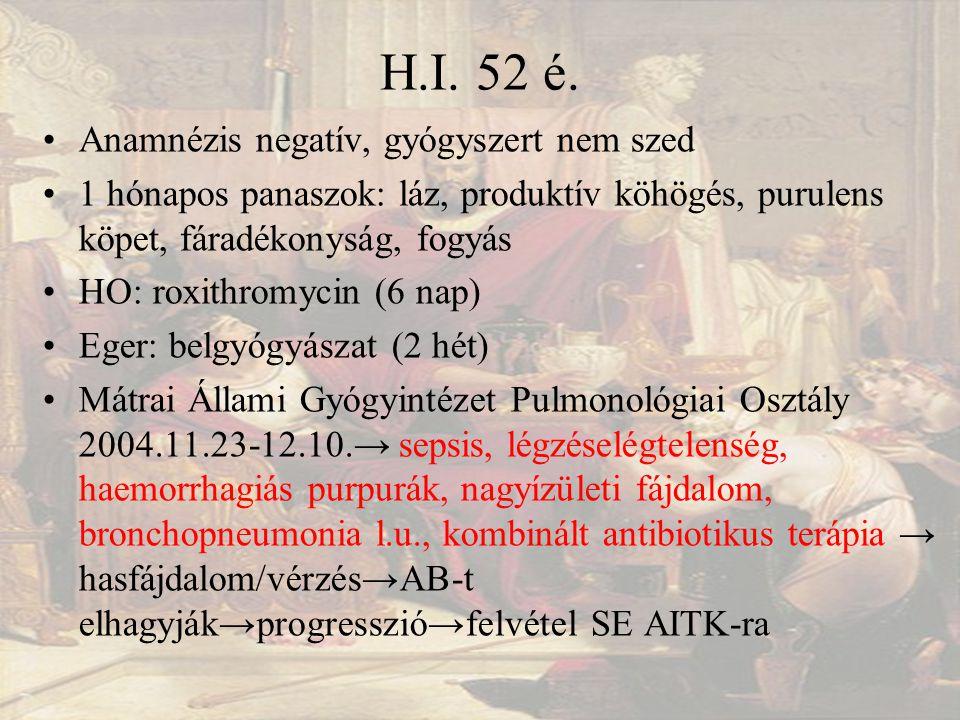 H.I. 52 é.