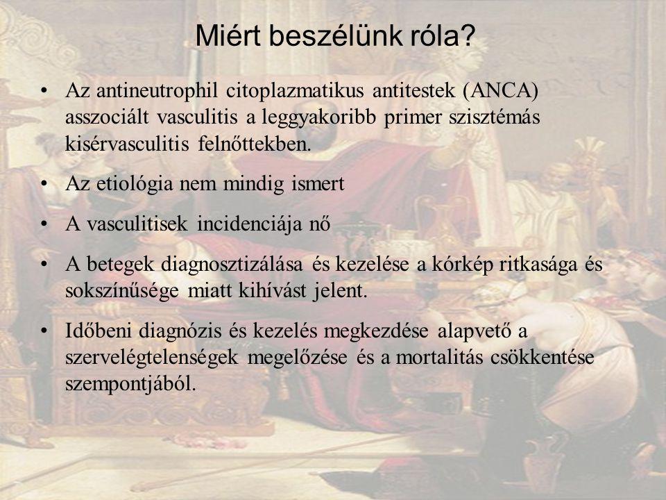 Az antineutrophil citoplazmatikus antitestek (ANCA) asszociált vasculitis a leggyakoribb primer szisztémás kisérvasculitis felnőttekben.