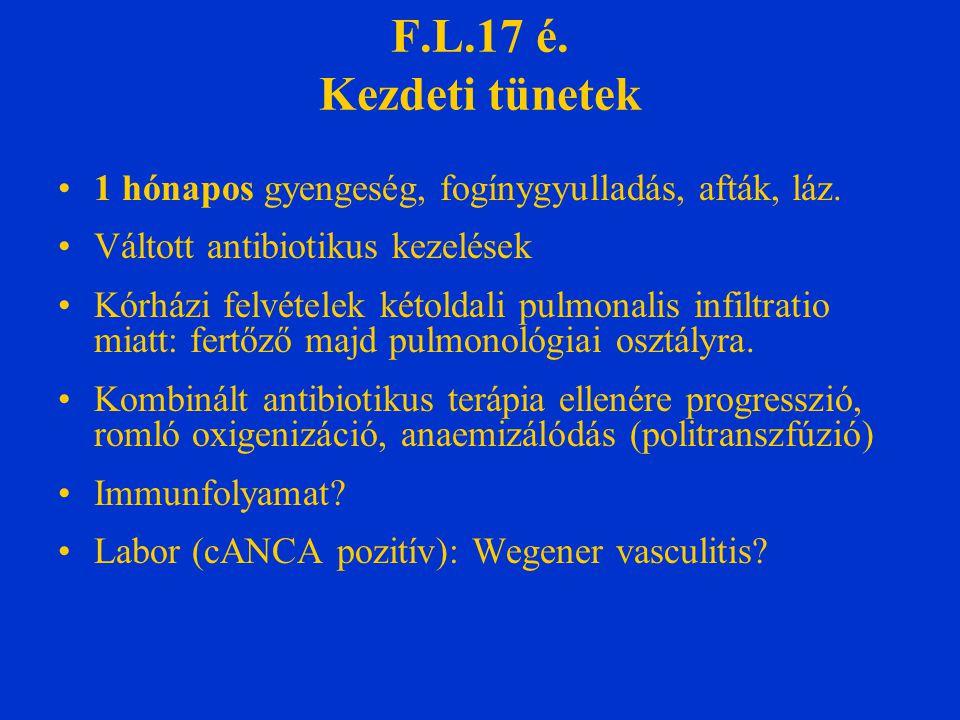 F.L.17 é. Kezdeti tünetek 1 hónapos gyengeség, fogínygyulladás, afták, láz. Váltott antibiotikus kezelések Kórházi felvételek kétoldali pulmonalis inf