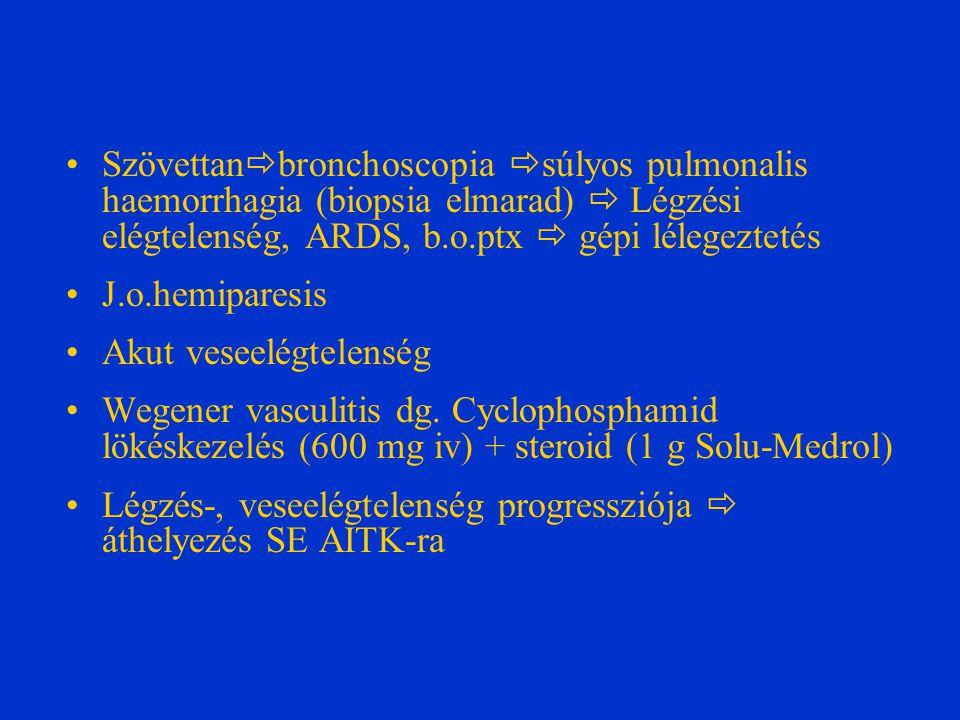 Szövettan  bronchoscopia  súlyos pulmonalis haemorrhagia (biopsia elmarad)  Légzési elégtelenség, ARDS, b.o.ptx  gépi lélegeztetés J.o.hemiparesis