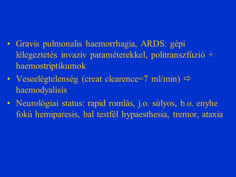 Gravis pulmonalis haemorrhagia, ARDS: gépi lélegeztetés invazív paraméterekkel, politranszfúzió + haemostriptikumok Veseelégtelenség (creat clearence=