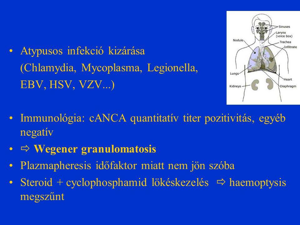 Atypusos infekció kizárása (Chlamydia, Mycoplasma, Legionella, EBV, HSV, VZV...) Immunológia: cANCA quantitatív titer pozitivitás, egyéb negatív  Wegener granulomatosis Plazmapheresis időfaktor miatt nem jön szóba Steroid + cyclophosphamid lökéskezelés  haemoptysis megszűnt