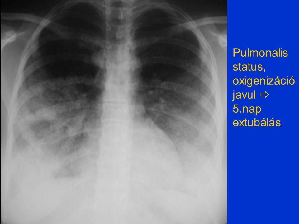 Pulmonalis status, oxigenizáció javul  5.nap extubálás