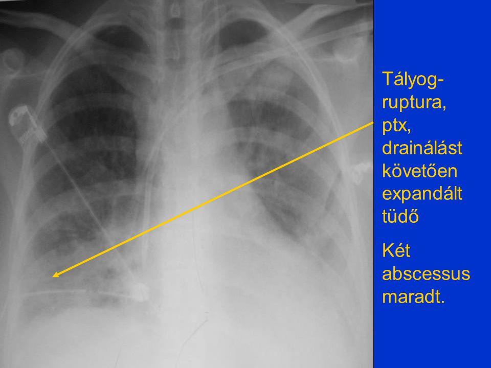 Tályog- ruptura, ptx, drainálást követően expandált tüdő Két abscessus maradt.