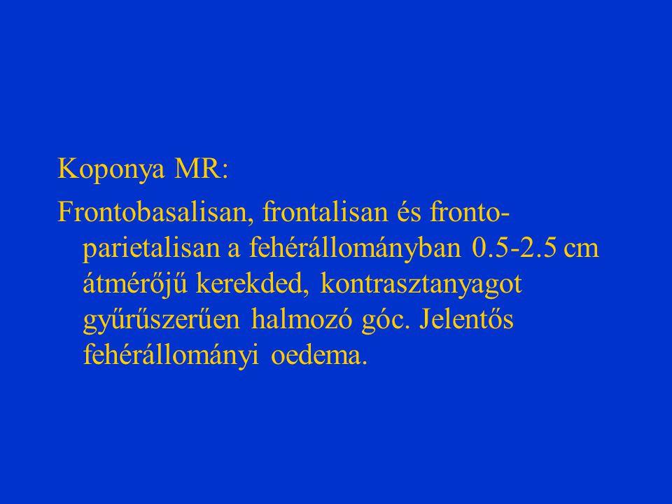 Koponya MR: Frontobasalisan, frontalisan és fronto- parietalisan a fehérállományban 0.5-2.5 cm átmérőjű kerekded, kontrasztanyagot gyűrűszerűen halmozó góc.