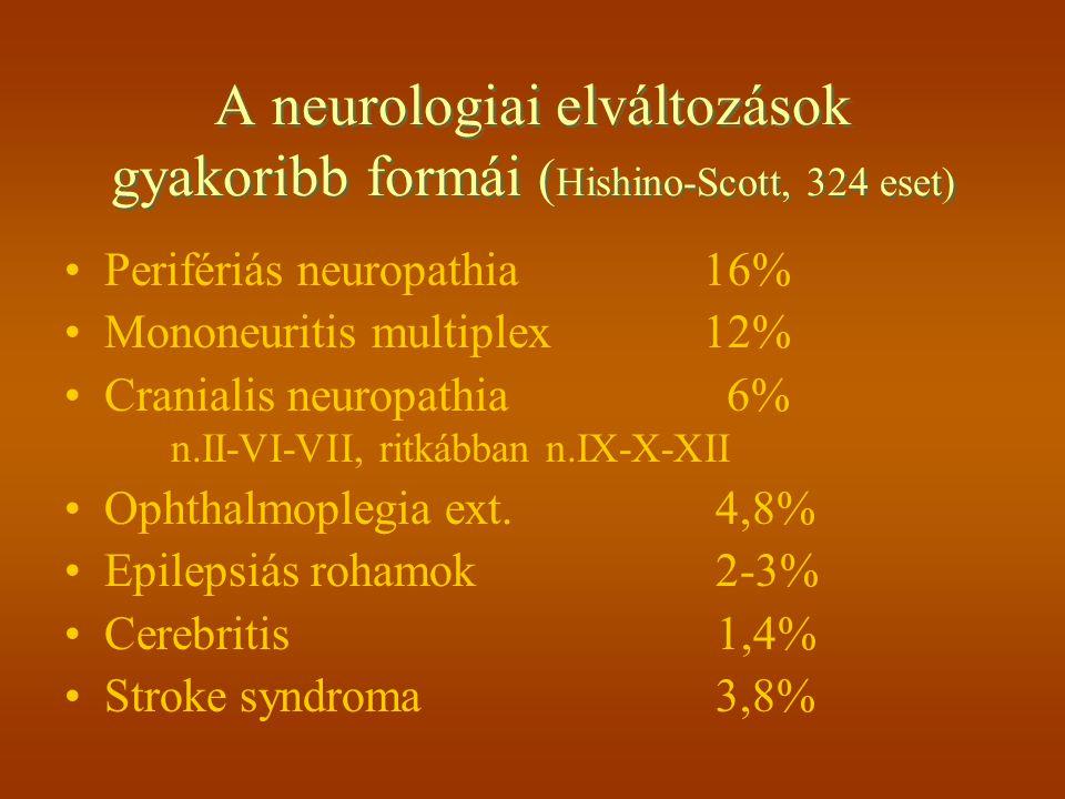 A neurologiai elváltozások gyakoribb formái ( Hishino-Scott, 324 eset) Perifériás neuropathia16% Mononeuritis multiplex12% Cranialis neuropathia 6% n.II-VI-VII, ritkábban n.IX-X-XII Ophthalmoplegia ext.