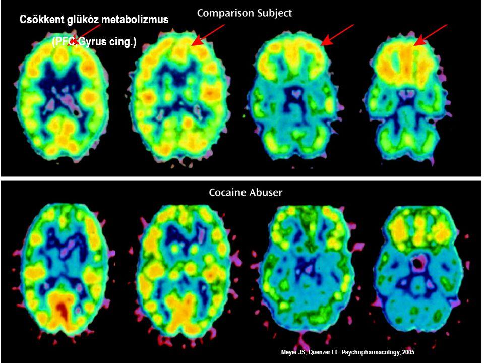 Meyer JS, Quenzer LF: Psychopharmacology, 2005 Orbitofrontalis kérgi aktiváció aktív kokain fogyasztónál