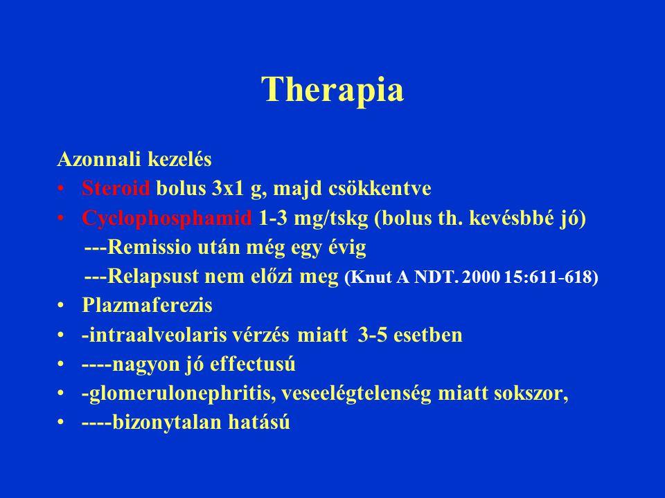 Therapia Azonnali kezelés Steroid bolus 3x1 g, majd csökkentve Cyclophosphamid 1-3 mg/tskg (bolus th. kevésbbé jó) ---Remissio után még egy évig ---Re