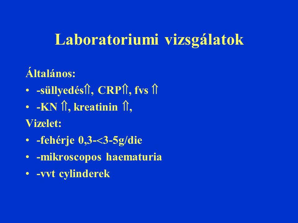 Laboratoriumi vizsgálatok Általános: -süllyedés , CRP , fvs  -KN , kreatinin , Vizelet: -fehérje 0,3-  3-5g/die -mikroscopos haematuria -vvt cylinderek