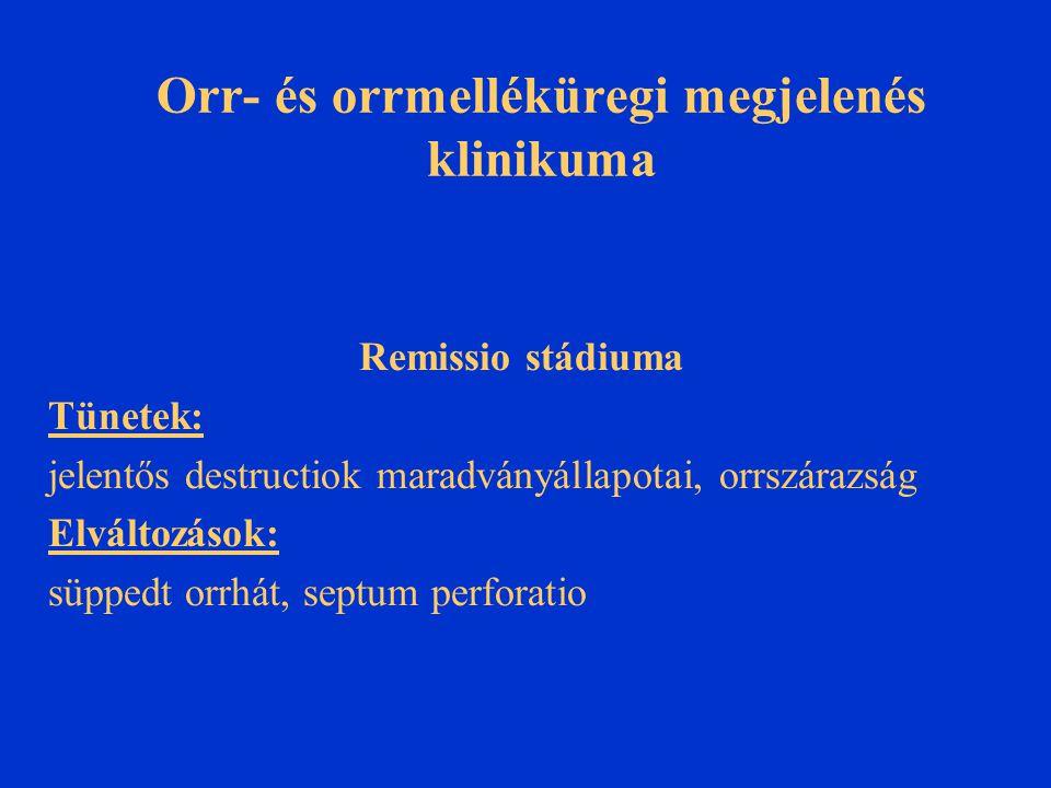 Orr- és orrmelléküregi megjelenés klinikuma Remissio stádiuma Tünetek: jelentős destructiok maradványállapotai, orrszárazság Elváltozások: süppedt orr