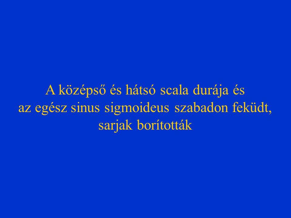 A középső és hátsó scala durája és az egész sinus sigmoideus szabadon feküdt, sarjak borították
