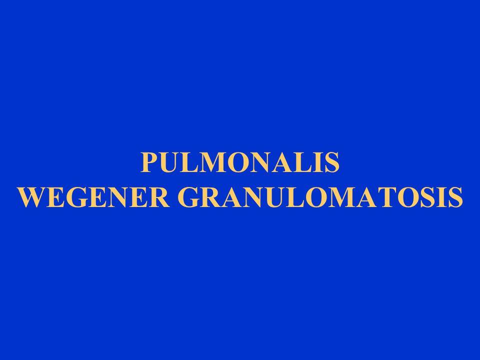 PULMONALIS WEGENER GRANULOMATOSIS