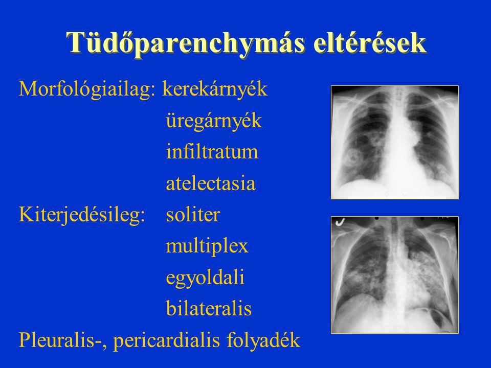 Tüdőparenchymás eltérések Morfológiailag: kerekárnyék üregárnyék infiltratum atelectasia Kiterjedésileg:soliter multiplex egyoldali bilateralis Pleura