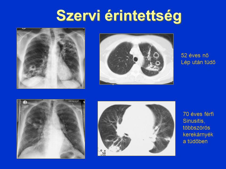 52 éves nő Lép után tüdő 70 éves férfi Sinusitis, többszörös kerekárnyék a tüdőben Szervi érintettség