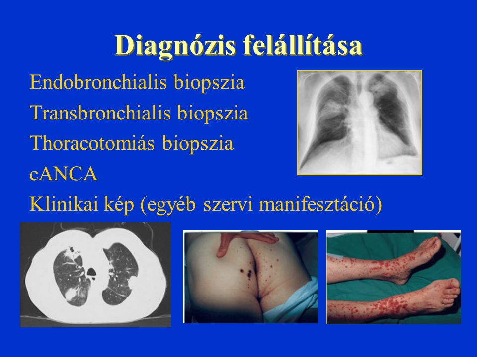 Diagnózis felállítása Endobronchialis biopszia Transbronchialis biopszia Thoracotomiás biopszia cANCA Klinikai kép (egyéb szervi manifesztáció)