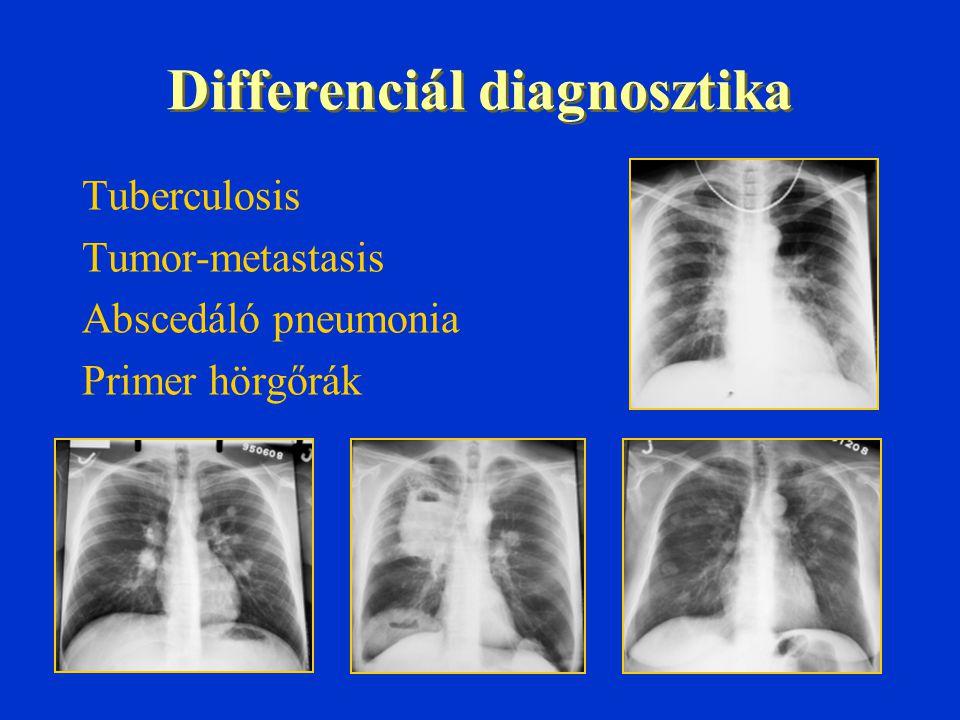 Differenciál diagnosztika Tuberculosis Tumor-metastasis Abscedáló pneumonia Primer hörgőrák