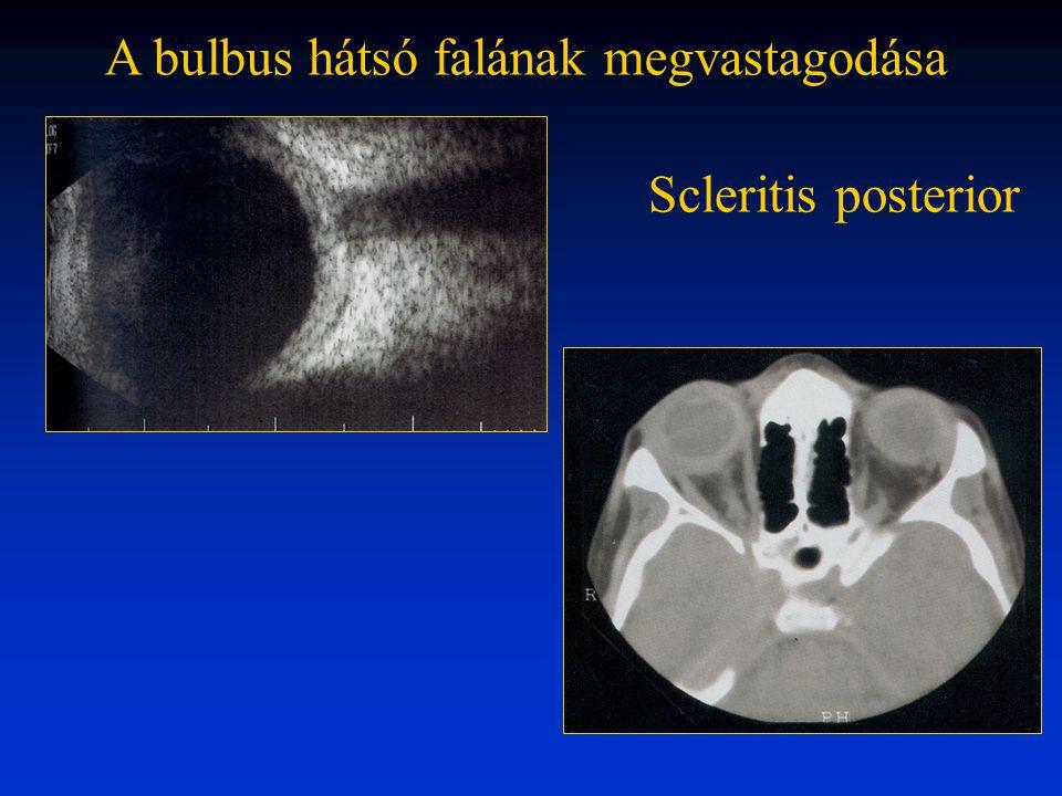 A bulbus hátsó falának megvastagodása Scleritis posterior