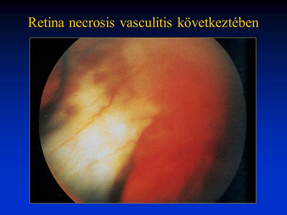 Retina necrosis vasculitis következtében