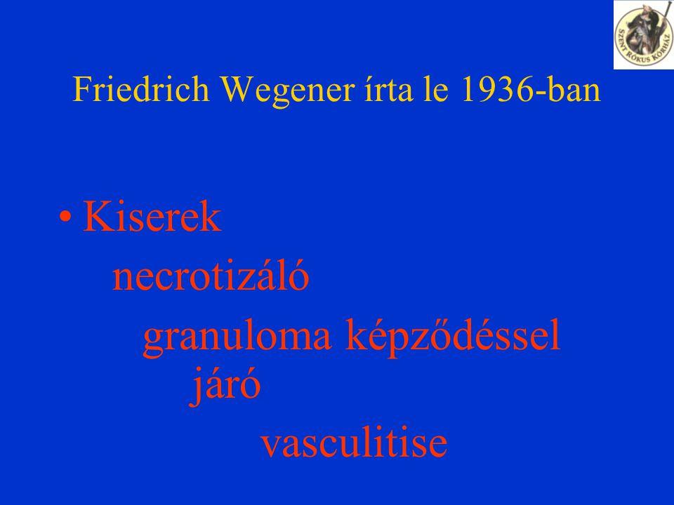 """KLASSZIFIKÁCIÓ 3 kórforma: Generalizált: szisztémás vasculitis alsó, felső légutak, vese Limitált: légzőszervi érintettség """"Nagyon limitált : csak egyéb szerv, pl."""