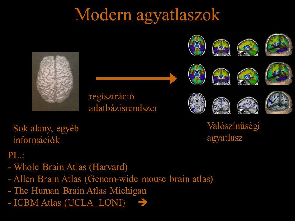 Modern agyatlaszok Sok alany, egyéb információk regisztráció adatbázisrendszer Valószínüségi agyatlasz PL.: - Whole Brain Atlas (Harvard) - Allen Brai