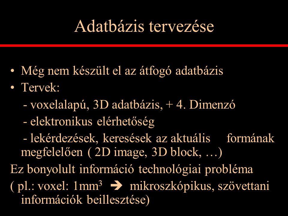 Adatbázis tervezése Még nem készült el az átfogó adatbázis Tervek: - voxelalapú, 3D adatbázis, + 4. Dimenzó - elektronikus elérhetőség - lekérdezések,