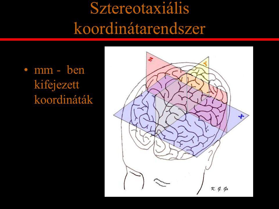 Sztereotaxiális koordinátarendszer mm - ben kifejezett koordináták