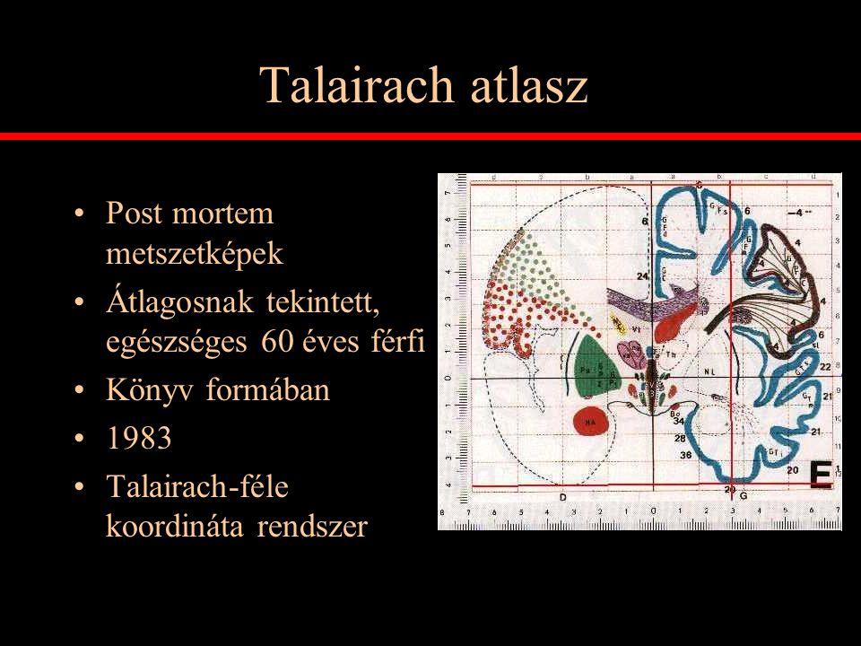 Talairach atlasz Post mortem metszetképek Átlagosnak tekintett, egészséges 60 éves férfi Könyv formában 1983 Talairach-féle koordináta rendszer