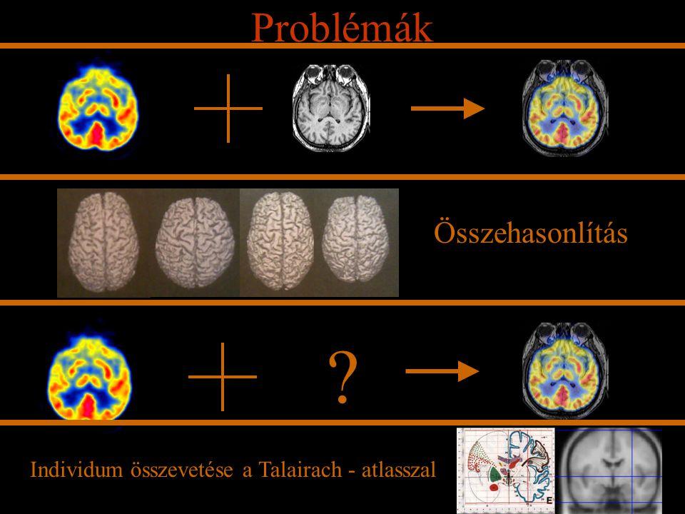 Problémák Összehasonlítás ? Individum összevetése a Talairach - atlasszal