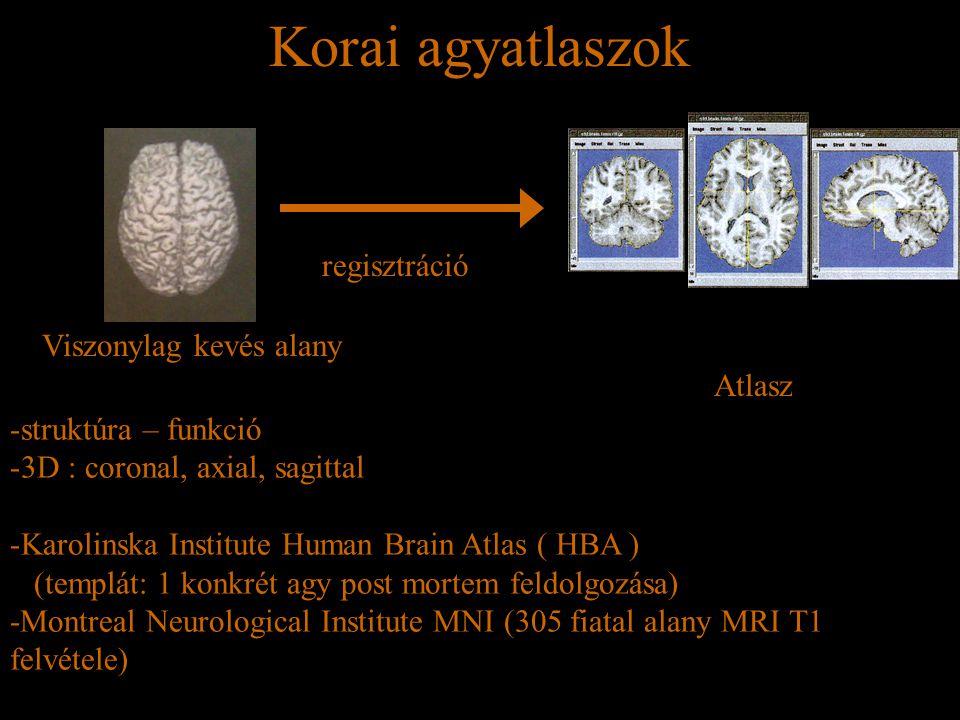 Korai agyatlaszok Viszonylag kevés alany regisztráció Atlasz -struktúra – funkció -3D : coronal, axial, sagittal -Karolinska Institute Human Brain Atl