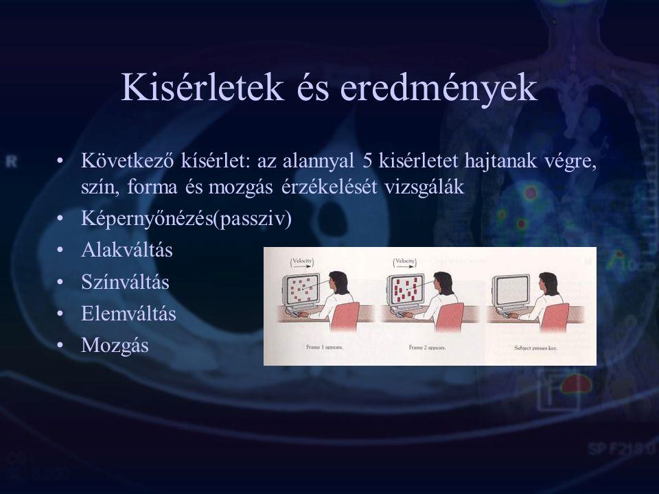 Kísérletek & eredmények Pár fiatalember vizualizál PET-ben: ábécé betüket, a Himnusz szövegét. Eredmény az animáción látható:a látási képzelet nem akt
