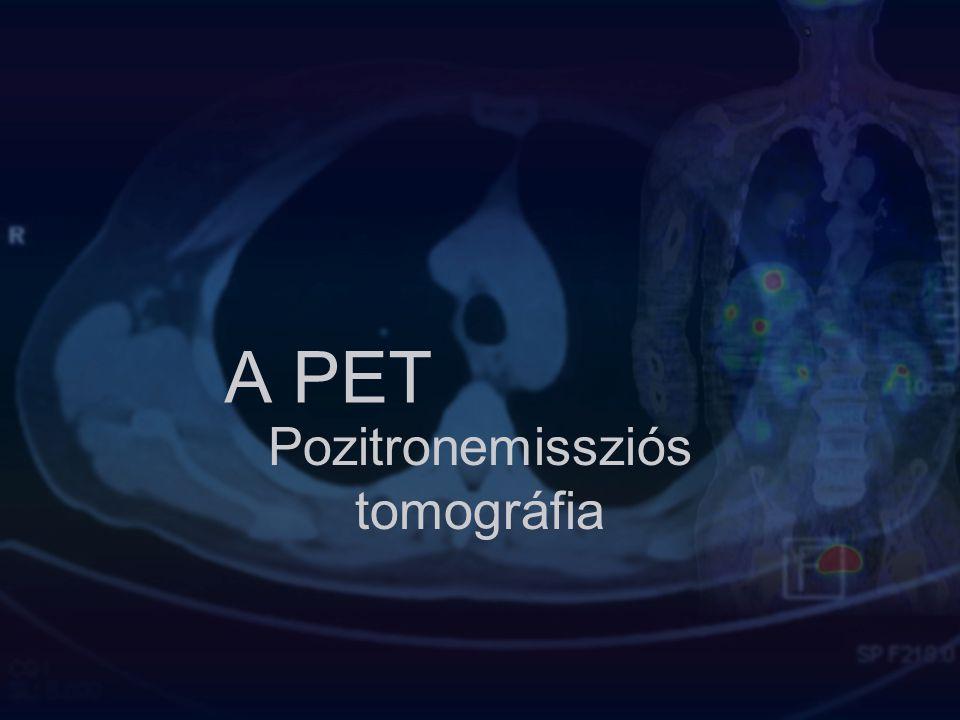 Röviden az előadás tematikájáról PET működési elvének áttekintése Miért hasznos a PET, hol alkalmazzuk Gyógyszerfejlesztések Tumor azonosítása a technikával PET és a látási képzelet Összefoglalás