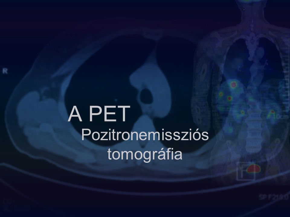 A PET Pozitronemissziós tomográfia