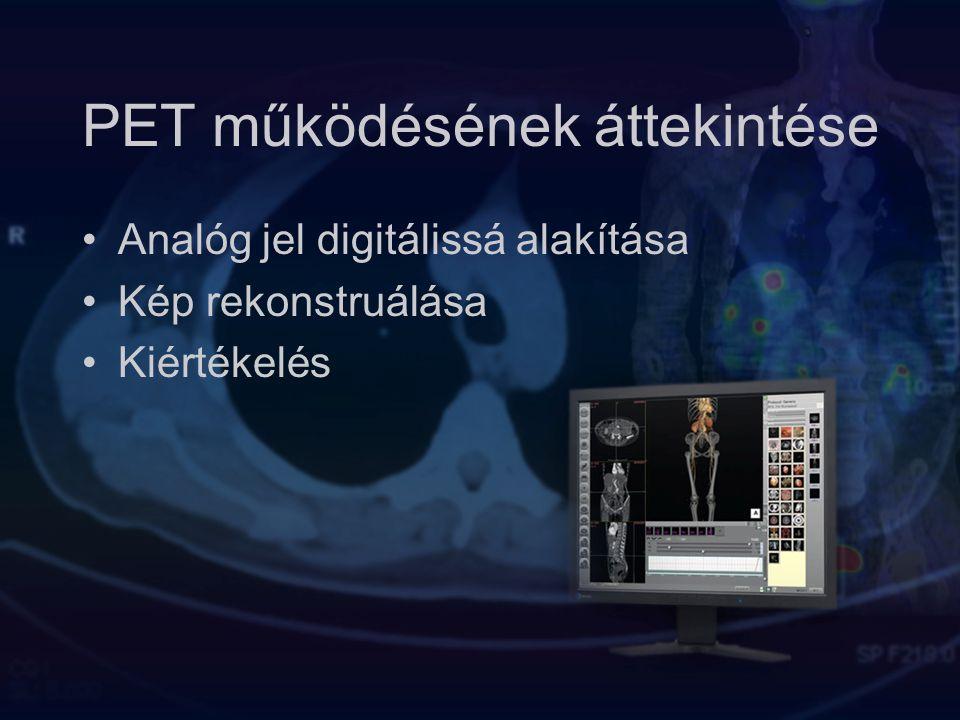 PET működésének áttekintése Analóg jel digitálissá alakítása Kép rekonstruálása Kiértékelés