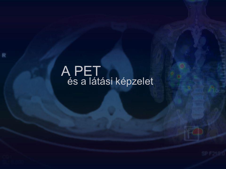 A PET és a látási képzelet