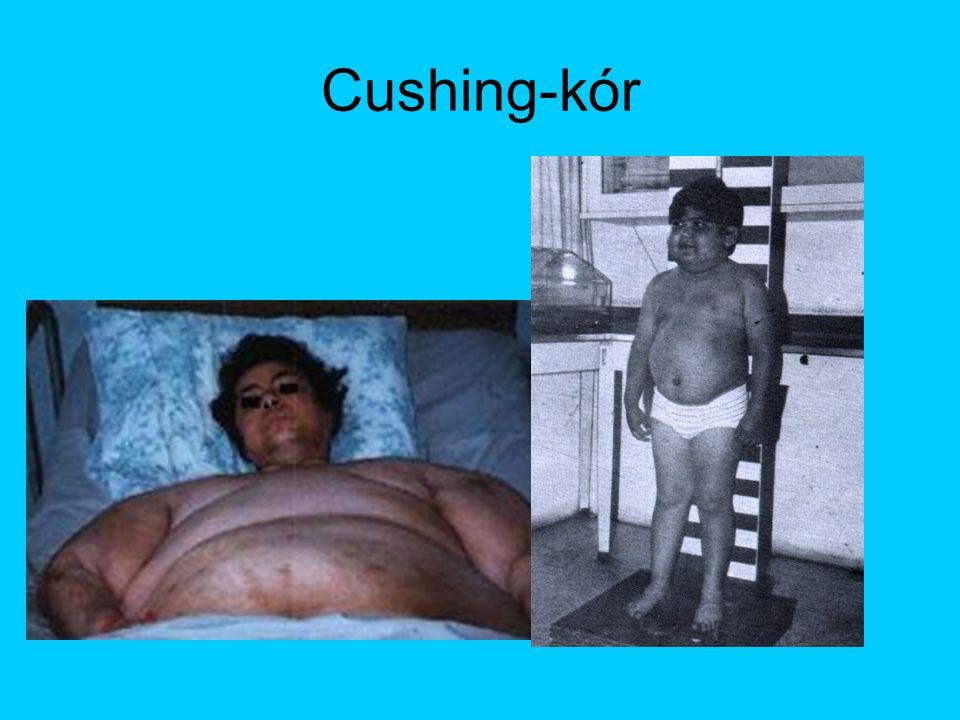 Cushing-kór